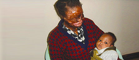 Views from Fiona: Acid Attack Survivors
